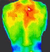 A Critical Look at the Use of Thermography by Chiropractors