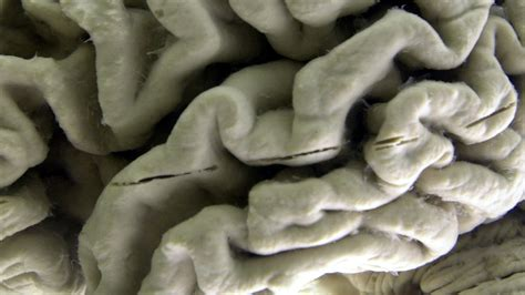 A Third of Dementia Cases Could Be Preventable Says New