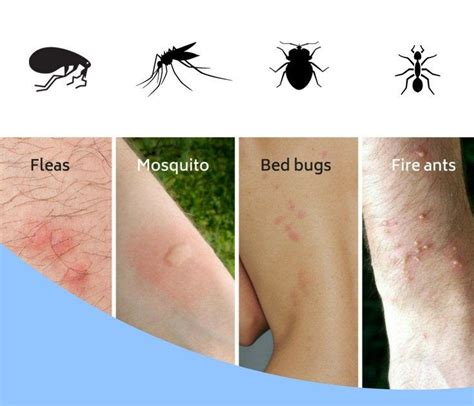 Bed Bugs Symptoms Bites Prevention Treatment and Removal