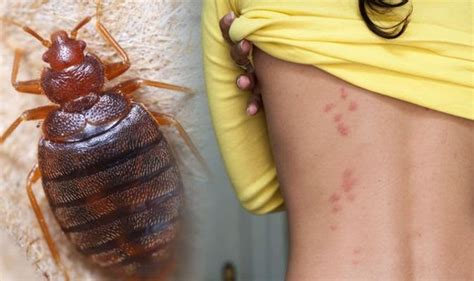 Bed bugs Signs of an Infestation How to Get Rid of Bed