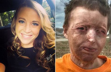 Courtney Waldon Recovers from Severe Burns on Entire Body
