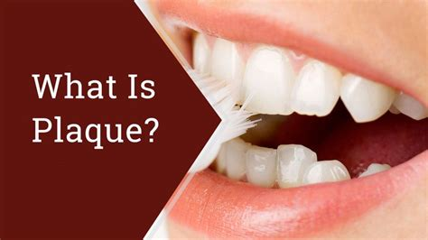 How Plaque and Gum Disease Affect Your Health WebMD