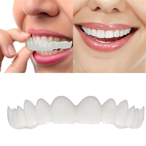 Snap on smiles for perfect teeth is the latest dental fix