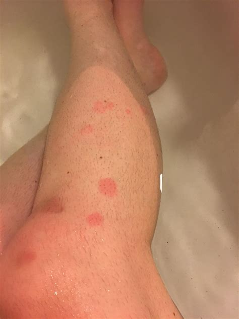 What Do Bed Bug Bite Look Like Pictures of Bed Bug Bites