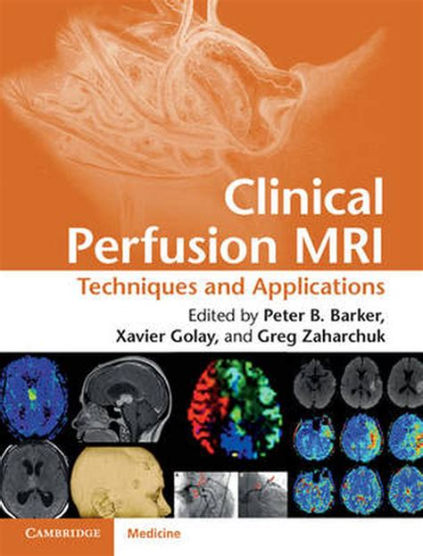 Clinical Perfusion MRI English Edition