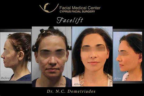 Cyprus Facial Surgery