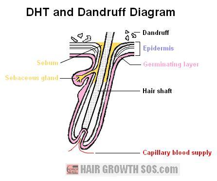 diagram of dandruff