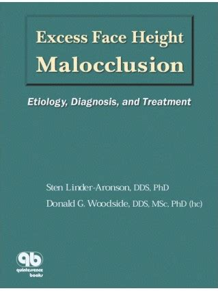 Excess Face Height Malocclusion Etiology Diagnosis And Treatment