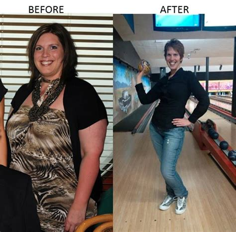 Gastric Sleeve Surgery In Mexico How I Lost 179 Pounds