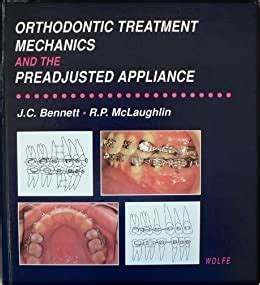 Orthodontic Treatment Mechanics And Preadjusted Appliances