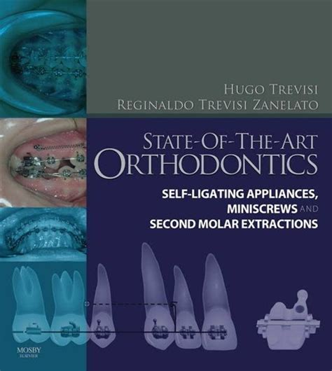 State Of The Art Orthodontics Self Ligating Appliances Miniscrews And Second Molars Extraction 1e