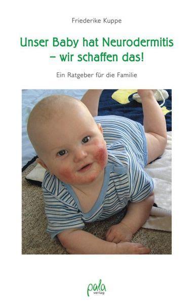 Unser Baby Hat Neurodermitis Wir Schaffen Das Ein Ratgeber Fur Die ...