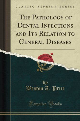 The Pathology Of Dental Infections And Its Relation To General Diseases Classic Reprint